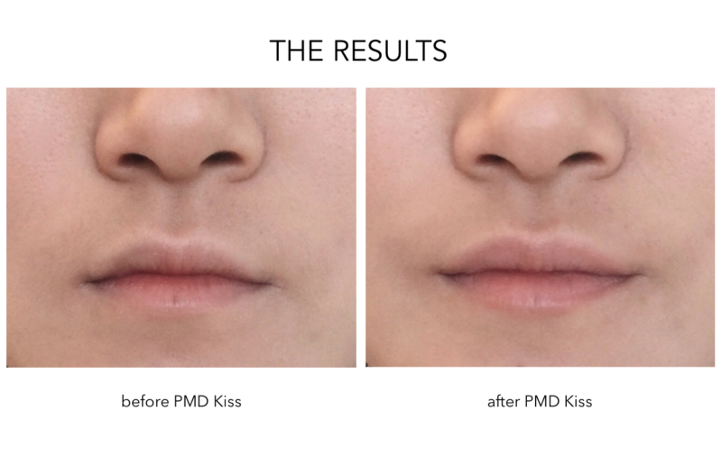 PMD Kiss Results Before and After, PMD Kiss Review, PMD Kiss Lip Plumper Honest Review, PMD Kiss Lip Plumping System Results